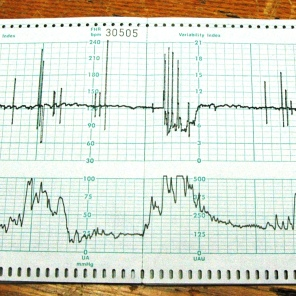 Fetal monitoring chart used for teaching a Variability Index, n.d. HSC Archives/Museum 2018_033_007